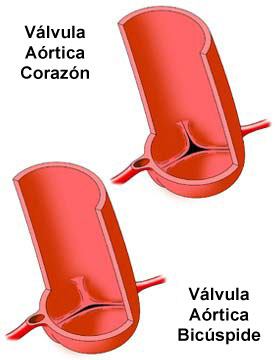 Bicuspid Aortic Valve